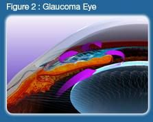 Glaucoma is the name given to a group of eye diseases in which the optic nerve at the back of the eye is slowly damaged then destroyed. It is a leading cause of blindness and vision impairment affecting approximately 2.5 million Americans. http://arizonacataract.com/eye-problems/glaucoma/