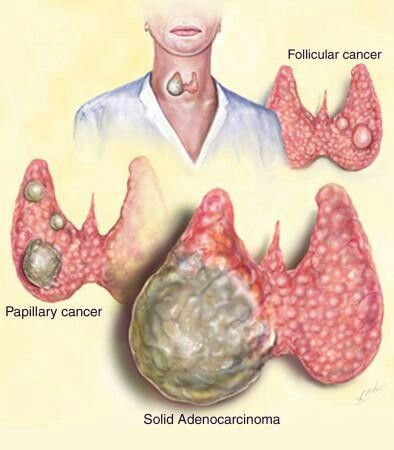 Thyroid cancer types. I had papillary but also lost a parathyroid during my thyroidectomy.