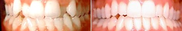 """Want to see some """"before and after"""" smiles from people using Invisalign?  Check these out."""