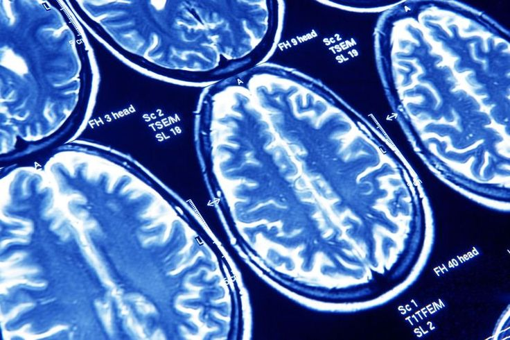 What Is Cerebral Atrophy? Is Your Brain Shrinking?