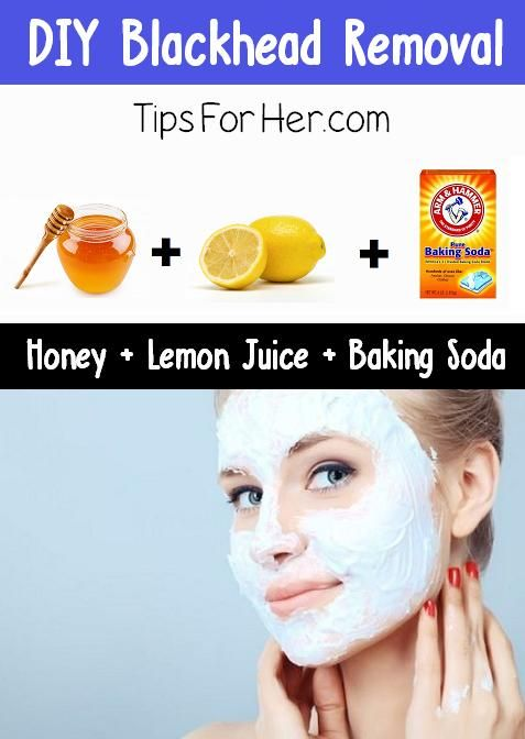 DIY-Blackhead-RemovalAn insanely easy tip to remove those nasty looking black heads. So simple all you need is 3 items you can probably find in your kitchen.  You'll Need: 1/2 tbsp Honey 2 tsp. Lemon Juice 2 tsp. Baking Soda  Mix ingredients together until pasty. Rinse face before applying and use a cotton swab to apply mixture to affected areas.  After 2-5 minutes, rinse with cool water, pat dry with a soft towel and apply moisturizer.