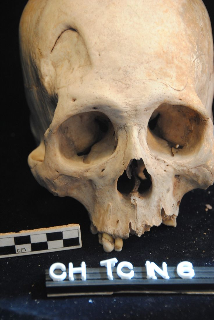 Brutal Brawls And Cranial Surgery Discovered On Ancient Skeletons From Lake Titicaca. Healed depressed cranial fracture on Individual 6 from LIP Ch'isi. (Photo used with kind permission of S. Juengst.)