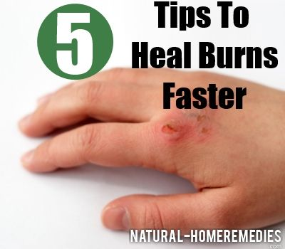 How To Heal Burns Faster with Food and Diet