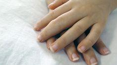 Tratar artrite nos dedos das mãos - Bolsa de Mulher