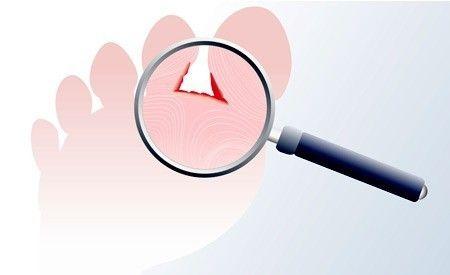(Zentrum der Gesundheit) - Schätzungen zufolge machen 70 Prozent der Bevölkerung irgendwann einmal in ihrem Leben Bekanntschaft mit Fusspilz. Diese Pilzerkrankung deutet auf ein geschwächtes Immunsystem hin. Die Anwendung chemischer Anti-Pilz-Medikamente schwächt das Immunsystem jedoch noch mehr. Doch es gibt einige sehr effektive und vor allem natürliche Heil- und Hausmittel, die den Fusspilz rasch beseitigen und einen erneuten Ausbruch der Infektion verhindern können.