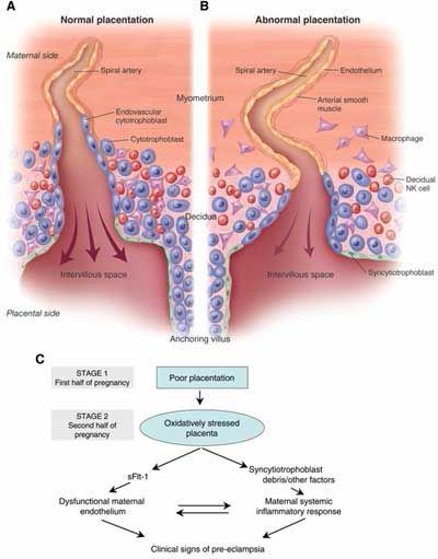 Pre-eclampsia info