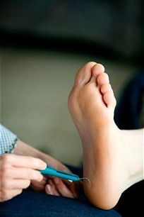 Another very common cause of Plantar Fasciitis is the type of shoe you choose to wear.