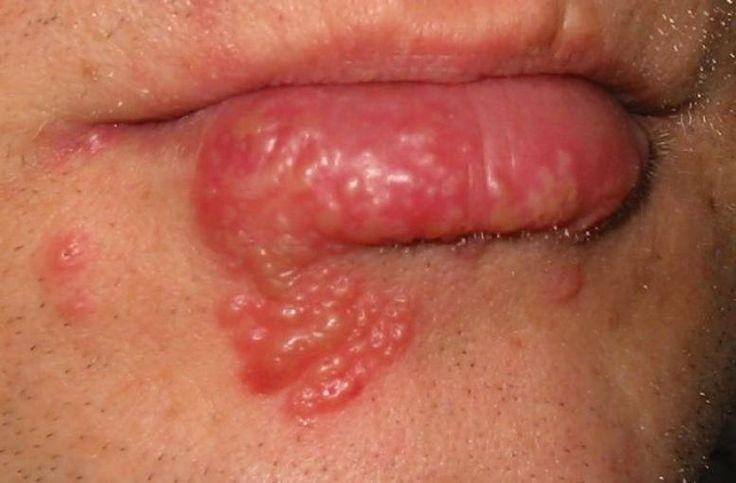 Herpes Symptome: Kribbeln Schmerzen, Bläschen, Schwellung meist an der Lippe Risikofaktoren: Anlagebedingte Empfindlichkeit Auslöser: Stress, Sonne, Ekel Ist er heilbar? Nein, da die Viren im Körper bleiben. Der einzelne Krankheitsschub ist aber heilbar. Was kann man dagegen tun? Hautärztliche Therapie: Antivirale Cremes oder Tabletten, Kühlung, verschiedene Versuche mit Elektrotherapie oder Wärmetherapie