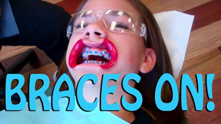 GETTING BRACES ON! ~ Part 1
