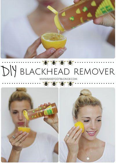 diy-blackhead-remover-recipe
