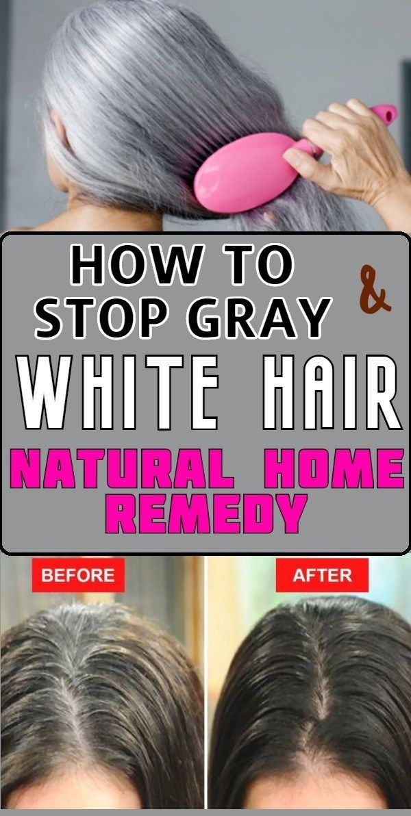 How to stop Gray and White Hair Natural Home Remedies