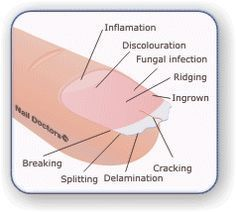 DIY Fingernail Health and Treatments : lists indicators of what your nails are telling you! Click here to find out what's wrong and how to fix it.