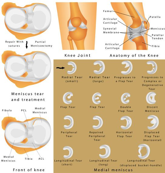 Standard Procedure? With Meniscus Surgery There's No Such Thing. #meniscussurgery