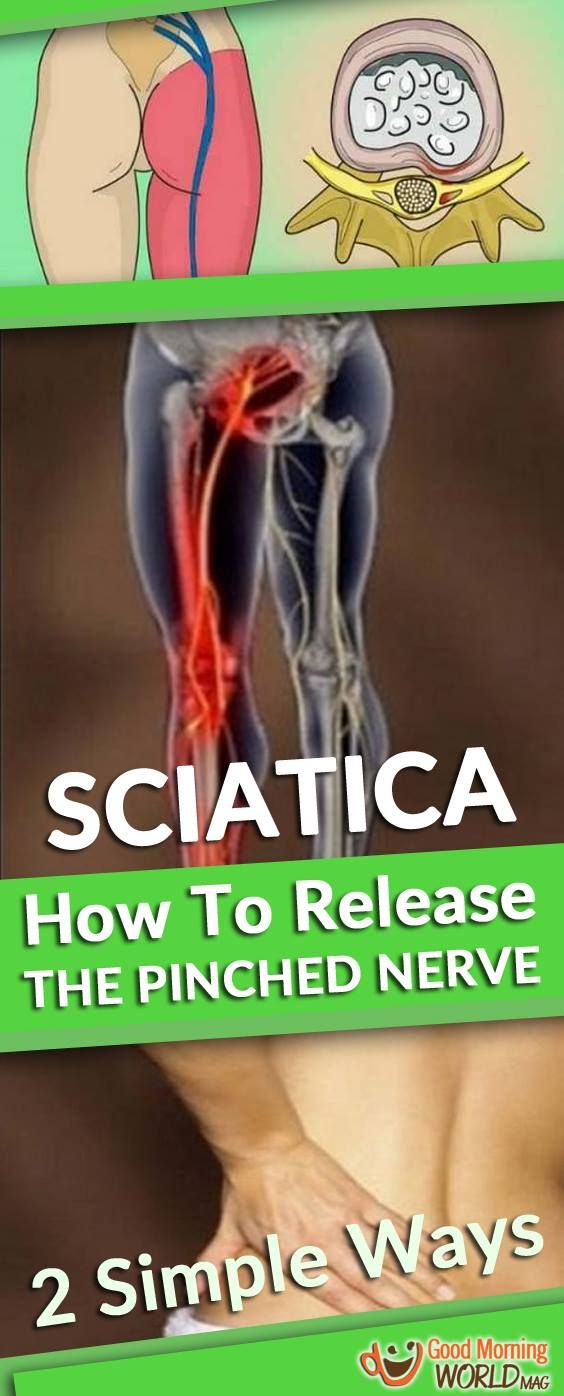 HOW TO RELEASE A PINCHED NERVE IN YOUR LUMBAR AREA (SCIATICA): 2 SIMPLE WAYS OF GETTING RID OF THE PAIN!