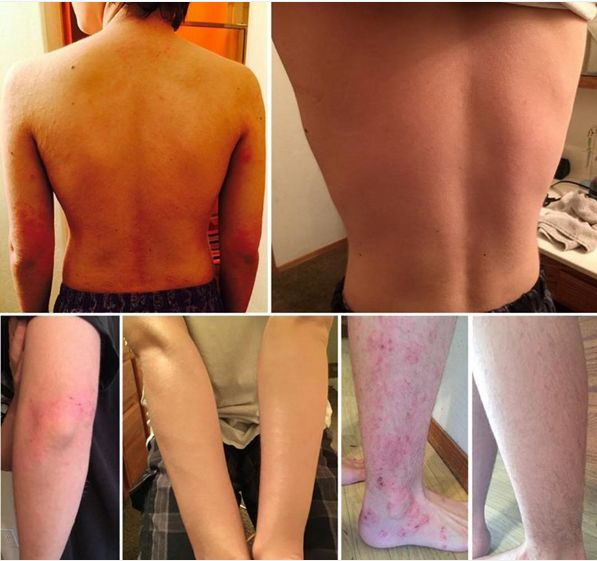 """TP, 14, has been on treatment for 11 months; started on 5x apps a day & is now in partial remission, only using the compound in the event of sporadic flare-ups. """"After puberty, the eczema that had always been under control exploded into a debilitating illness for my son, Dr Aron's treatment gave him (and the whole family) our lives back. To think that eczema doesn't rule our lives anymore, to not have it be a minute by minute concern is such a blessing."""""""