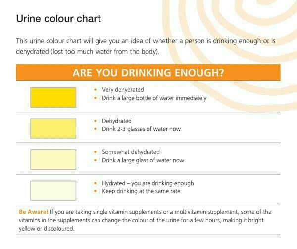 32 best Health \ Wellness Infographics images on Pinterest Info - sample urine color chart