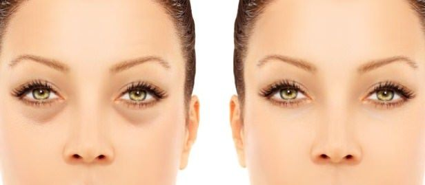 How to reduce puffy eyes quickly? Home remedies for puffy eyes treatment. Get rid of puffy eyes fast and naturally. Avoid puffy eyes. Cure puffy eyes.