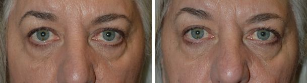 Before and 3 months after LEFT retraction of the eyelid surgery without graft, u