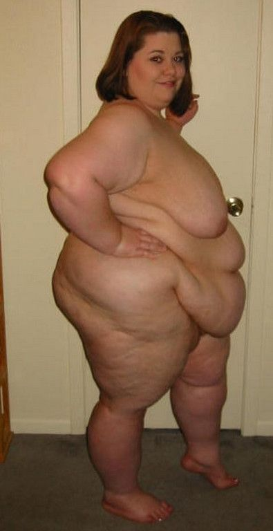 Obese nude funny — photo 8