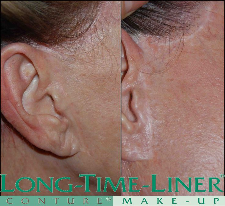 Have you heard of Scar Camouflage? Visible Scars can be diminished ...