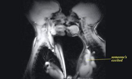 Sex von Innen - Aufnahme MRT: Zwei Menschen küssen sich- Sprechen, Küssen, Sex - Wie sehen diese Vorgänge im Körper aus? Ein Video zeigt eindrucksvolle MRT-Aufnahmen aus dem Inneren unseres Körpers.  Mit einer Magnetresonanztomographie (MRT) lässt sich besonders gut Weichteilgewebe, wie Bänder, Gehirn oder innere Organe im Körper darstellen. So kann im Akutfall ein Gerinnsel, die Ursache für Rückenschmerzen festgestellt oder Erstmaßnahmen nach einem Unfall eingeleitet werden. Ein…