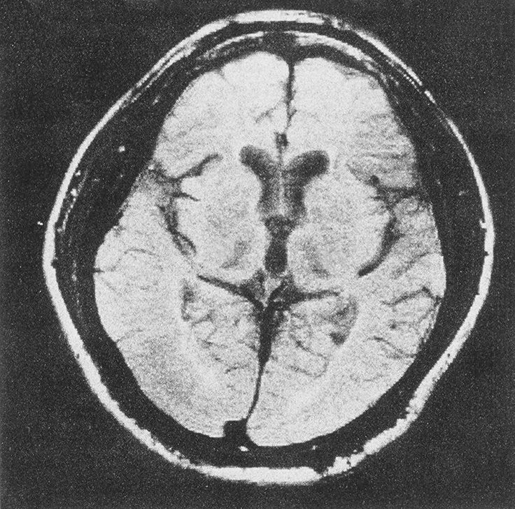 Cerebral atrophy in whitener abuse