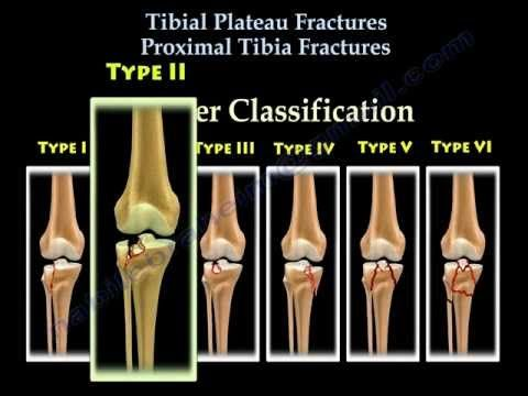 33 best images about broken mama on pinterest - Tibial plafond fracture classification ...