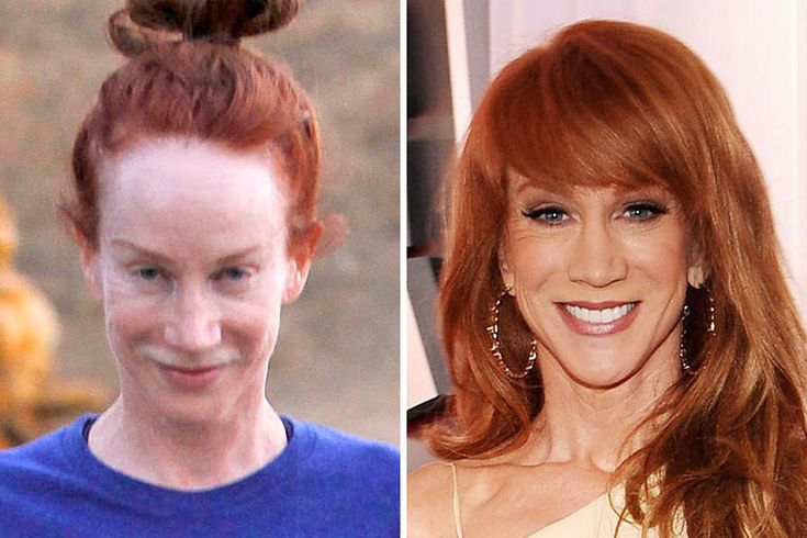Are we looking at Kathy Griffin on her daily workout or is that actually Carrot Top? Griffin has been involved with countless comedy productions over the years and is considered to be one of the staples of the industry, but after nearly 35 years as a Comedian she is facing something that isn't very funny at all: the severe effects of aging.