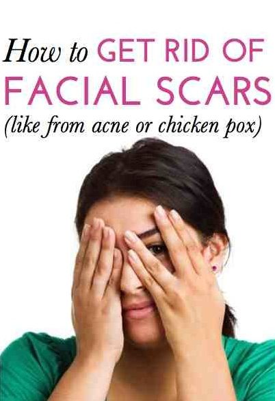 """what is money pox and how to get rid of it It may be possible to """"wake up"""" the virus and then kill it with standard  hsv-2  causes genital herpes, while varicella causes chicken pox and."""