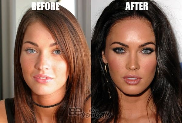 Megan rain plastic surgery