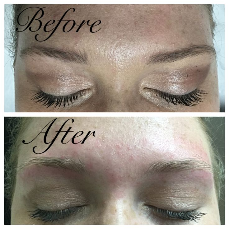 On October 3rd we did a quick clean up using a depileve wax on her eyebrows since she already had a good shape. After waxing we trimmed her eyebrows to make them look even. After the service we applied chamomile soothing cream to take the redness down a bit.