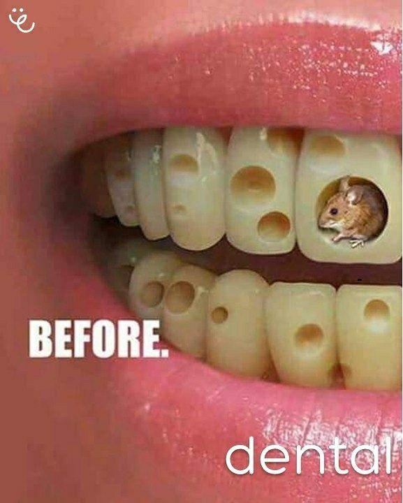 Tus dientes hablan de ti!   La estética bucal está relaciona directamente con la salud oral.  #dentalespinoza #dentist #dentistry #teeth #tooth #odontologia #dentalstudent #medical #dentista #dentalhygiene #odontolove #l4l #odonto #implant #dentalassistant #odontologo #teethwhitening #whiteteeth #prosthodontics #endodoncia #doctor #periodoncia #teethwhiteningkit #pearlywhites #activatedcharcoal #ortodoncias #guayaquil #med #braces