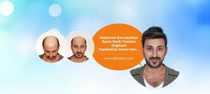 Saçsızlığa Hızlı ve Kalıcı Çözüm İçin Protez Saç Uygulamasını Tercih Edin   Saç Protezi ile saç ekimi arasındaki fark şudur ki;  Protez saçın en güzel özelliği kullanıcıya sağlık açısından problem  yaşatmaması ve kişinin var olan ana saçına zarar vermeden uygulanabilmesidir.Saç ekimi işleminde kök hücre nakli  gerçekleştirildiğinden dolayı saçın uzama süresi ve uygulamaya cevap  verme oranı zaman zaman düşmektedir.Protez saç #demohair