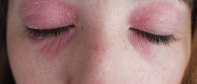 Lux Life | A Lifestyle Blog: My Struggle With Eye Eczema.