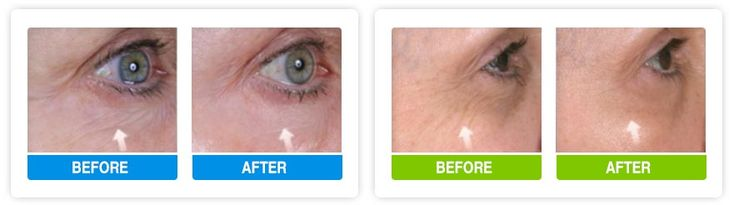 Eyevage #Review: How Safe and Effective Is This #Eye Cream? https://www.consumerhealthdigest.com/eye-cream-reviews/eyevage.html