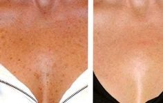3 Natural Ways to Erase Brown Spots From Your Skin, If you have annoying, unattractive brown spots on your skin, you may be worried about their cause. These