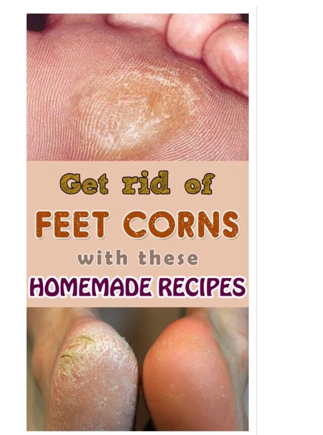 """""""GET RID OF FEET CORNS WITH THESE HOMEMADE RECIPES"""""""