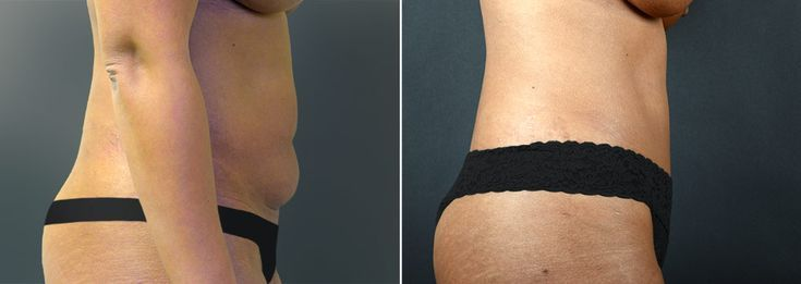 Before and after tummy tuck surgery. – #surgery #Tuck #tummy – Before and after …