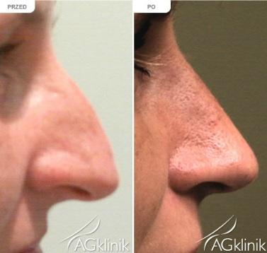 Korekcja nosa przed i po.
