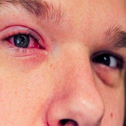 Home Remedies For Eye Infection - Natural Treatments & Cure For Eye Infection | Search Home Remedy