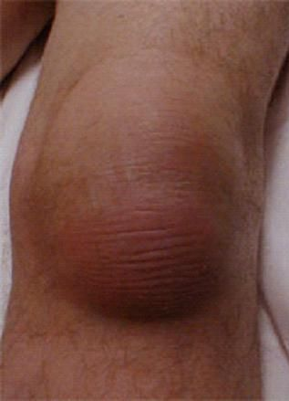 Knee bursitis is an inflammation of one of the bursa located near the knee joint. Learn more about how this happens and the symptoms below..... http://www.natural-health-news.com/knee-bursitis-pes-anserine