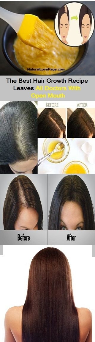 The Best Hair Growth Recipe Leaves All Doctors With Open Mouth