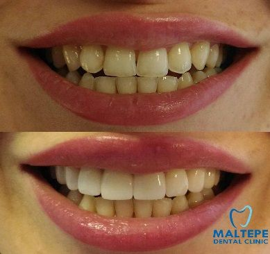 perfect teeth for the upper jaw with veneers