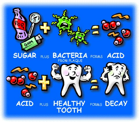 Picture shows process that teeth undergo in developing cavities and tooth decay. First, sugar (soda, gum, and candy) plus bacteria from plaque forms acid. Then the acid plus a healthy tooth forms decay.