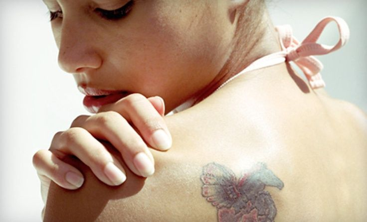 groupon four laser removal treatments on 4 6 or 8