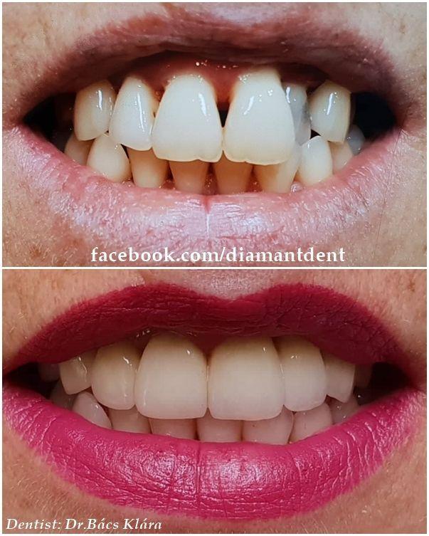 dentistflowUninterested Dental Implants Cost India