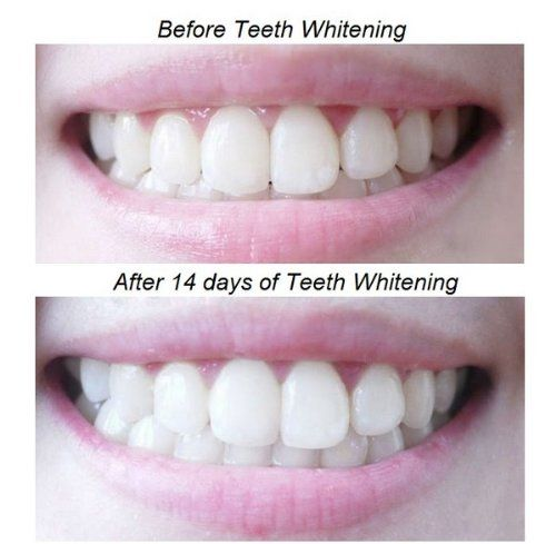 Eat Or Drink After Crest White Strips