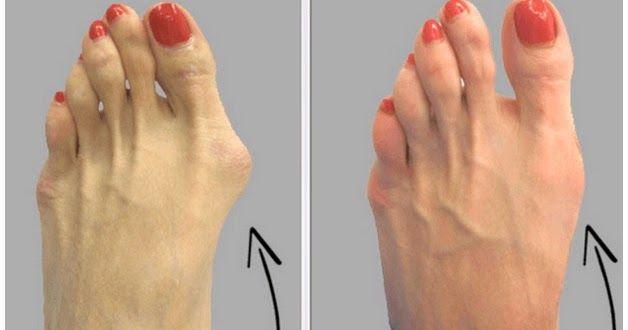 Ove kvrge su despoziti soli. Takođe angina, grioa, giht, loš metabolizam, loša ishrana kao i neudobne cipele mogu doprinjeti njihovom form...