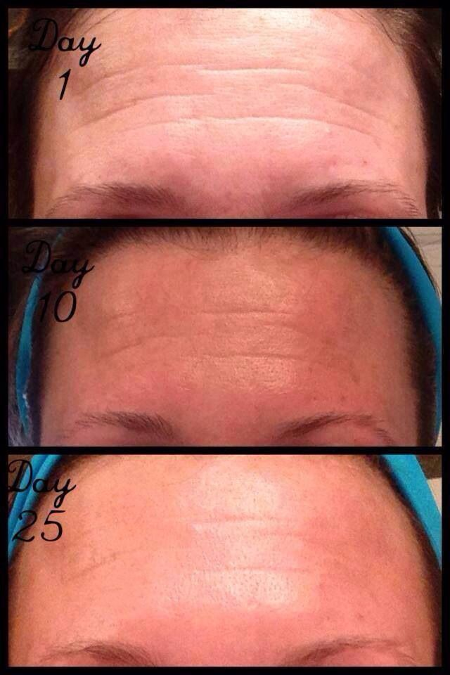 R+F Redefine AMP IT UP special...25 day results!! This fellow consultant said goodbye to her Botox injections and hello to Rodan + Fields with better results! Get 30% off of retail with this bundle! https://brittanybalog.myrandf.com/