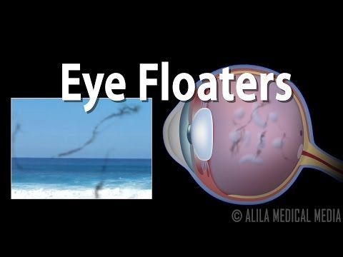 Eye Floaters, Retinal Tears and Retinal Detachments - YouTube